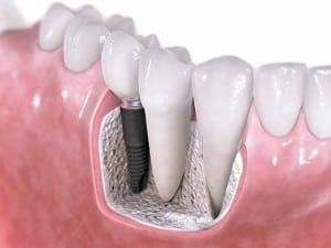 Dental Implants in Huntington Beach