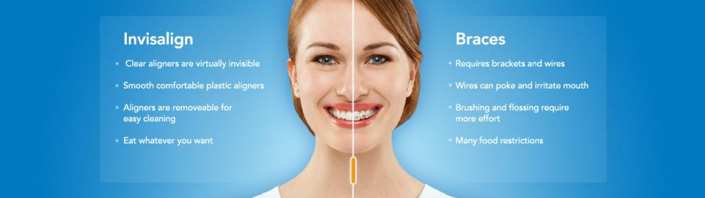Invisalign Huntington Beach