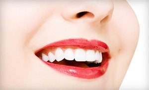 Porcelain Veneers in Huntington Beach