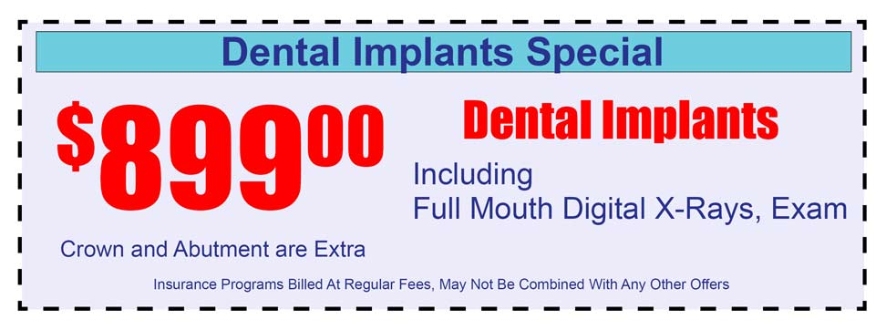 Click to print: $899 Per Implant Promotion